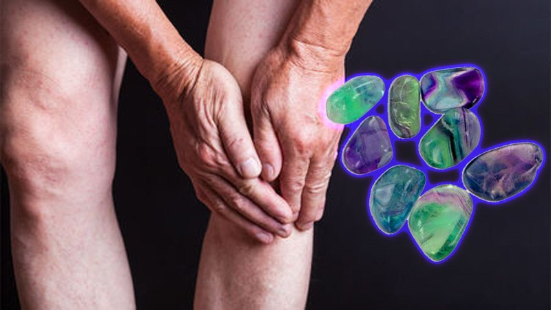 Crystals for Arthritis